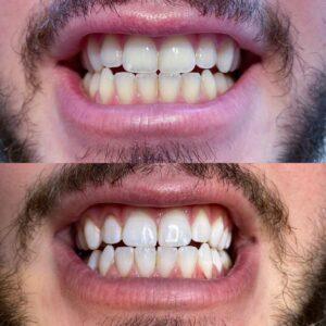 Ergebnis einer Zahnaufhellung